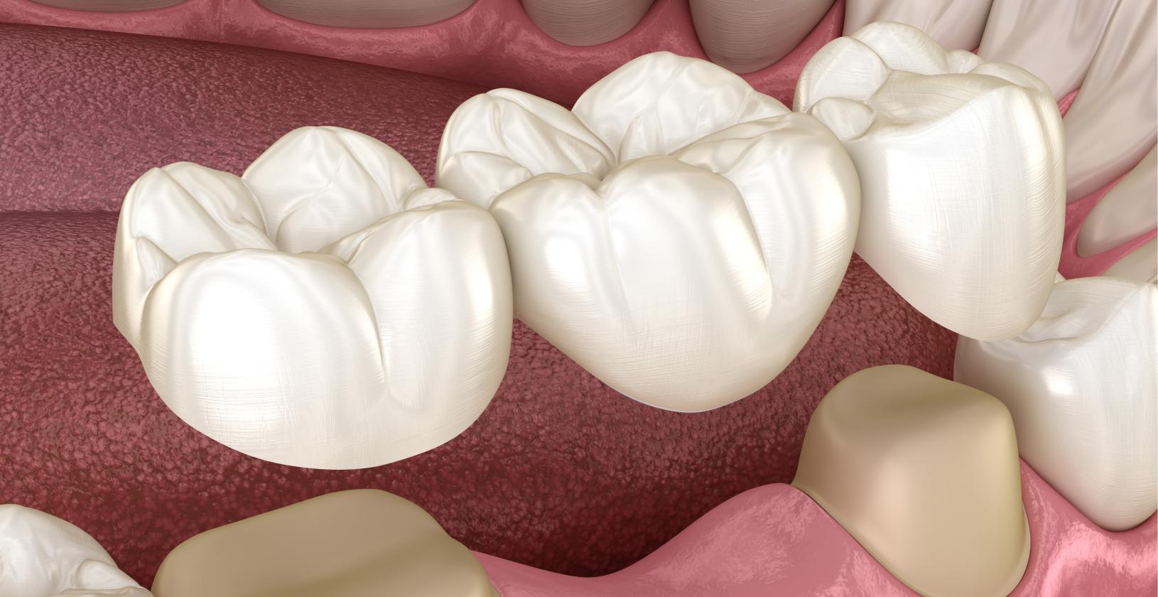 Tandara Dental Bridges A Complete Overview