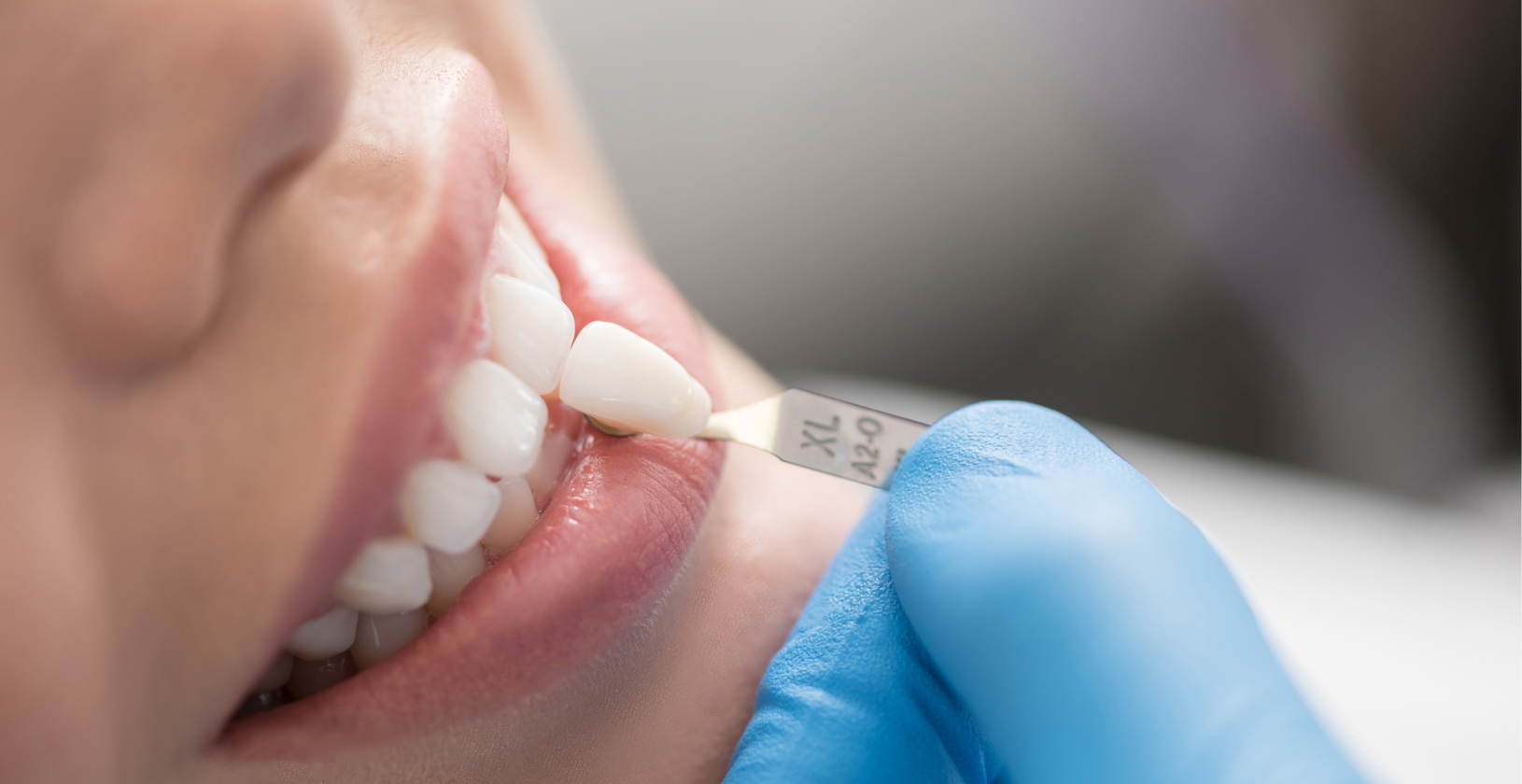 Tandara Dental Crowns –Types Procedures and Aftercare