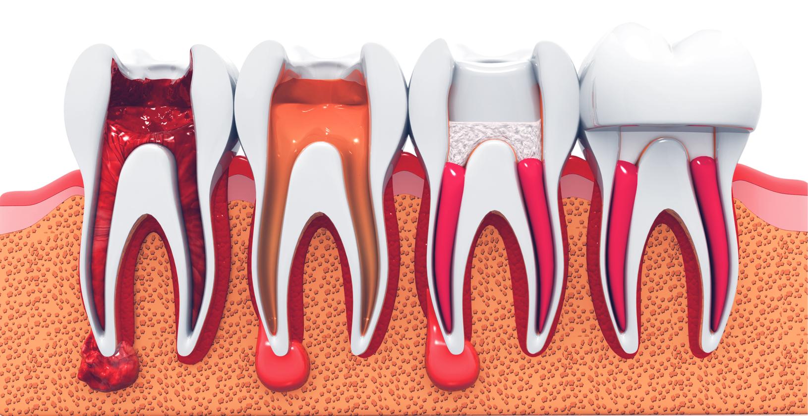 Tandara Dental Root Canals